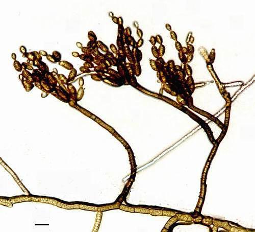 Cladosporium herbarum